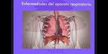 SECUNDARIA 3ºBIOLOGÍA Y GEOLOGÍAENFERMEDADES DEL APARATO RESPIRATORIO