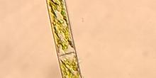 Cerva-L-03-01-03-zygnematales spiogyra