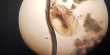 Imágenes de pulga de agua (Daphnia pulex) 3