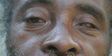 Hombre con catarata en los ojos, Quilombo, Sao Paulo, Brasil