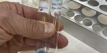 fehling de almidon y almidón hidrolizado por amilasa