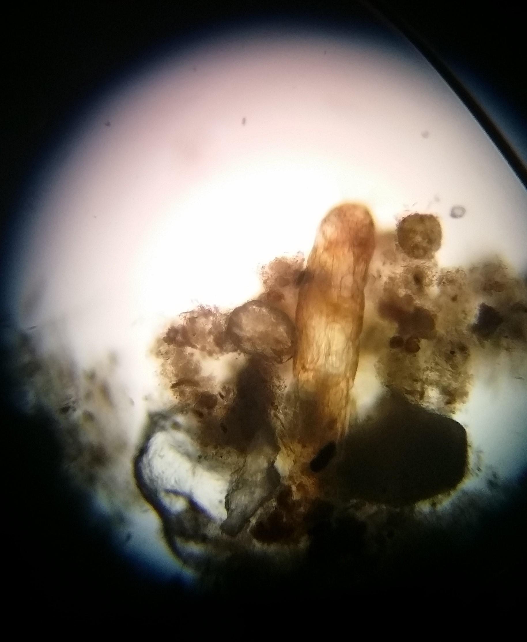 Larva de Dípterio 2