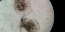 pulgas de agua