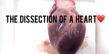Heart dissection Walk Through