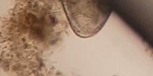 Cerva-L-03-01 ostrácodo+2 bolas__