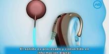 Cómo funciona un implante coclear