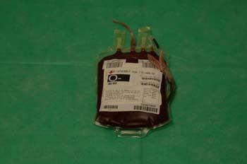 Bolsa de plasma sanguíneo