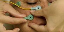 Electrolifting: retirada de electrodos
