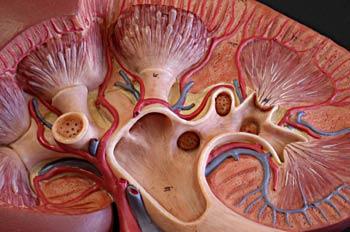 Sección de un riñón