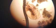 Imágenes de pulga de agua (Daphnia pulex) 2