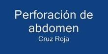 Perforación de abdomen