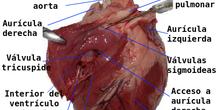 Disección de Corazón con Tercero de ESO IES Manuela Malasaña. Profesora Marisa Abelleira