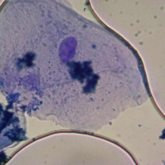 Células de la mucosa bucal 2