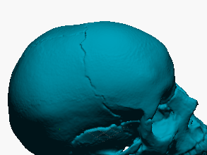 Cráneo humano (modelo anatómico escaneado)