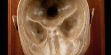 IES Isabel la Católica, Anatomía