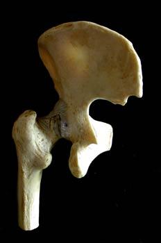 Articulación de la pelvis y el femur