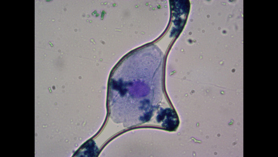 Células de la mucosa bucal