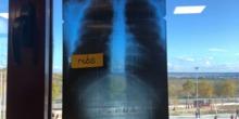 X ray Body