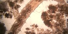 Cerva-L-03-01-01-oligoqueto_chaetogaster