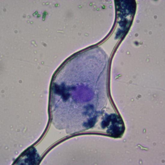 Células de la mucosa bucal 1