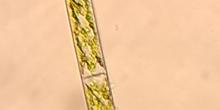 Alga Spyrogira