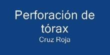 Perforación de tórax