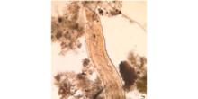 Oligoqueto Chaetogaster