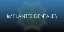 Los implantes dentales 1